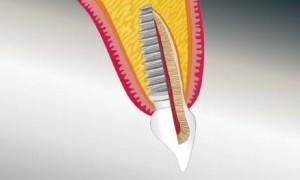 Implantat Vergleich Implantat / natürlicher Zahn